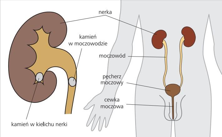 kamica układu moczowego