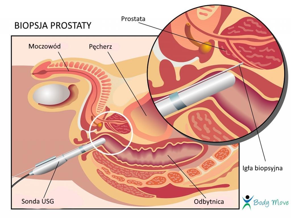 Badanie TRUS, biopsja prostaty