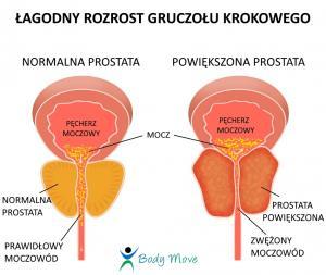 prostata łagodny rozrost gruczołu krokowego